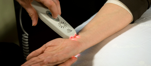 laser therapy for carpal tunnel syndrome