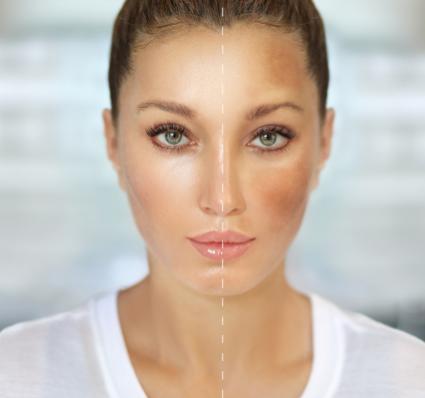 Healthpoint Laser Pigmentation skin care kelowna (1)
